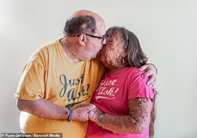 Cặp đôi đồng bệnh tương lân yêu nhau từ sự đồng cảm, bên nhau cả thập kỷ vẫn mặn nồng như thuở ban đầu - Ảnh 4.