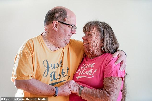 Cặp đôi đồng bệnh tương lân yêu nhau từ sự đồng cảm, bên nhau cả thập kỷ vẫn mặn nồng như thuở ban đầu - Ảnh 2.