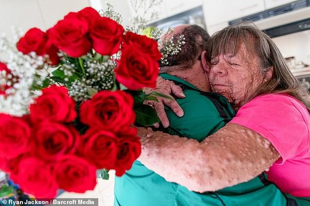 Cặp đôi đồng bệnh tương lân yêu nhau từ sự đồng cảm, bên nhau cả thập kỷ vẫn mặn nồng như thuở ban đầu - Ảnh 1.