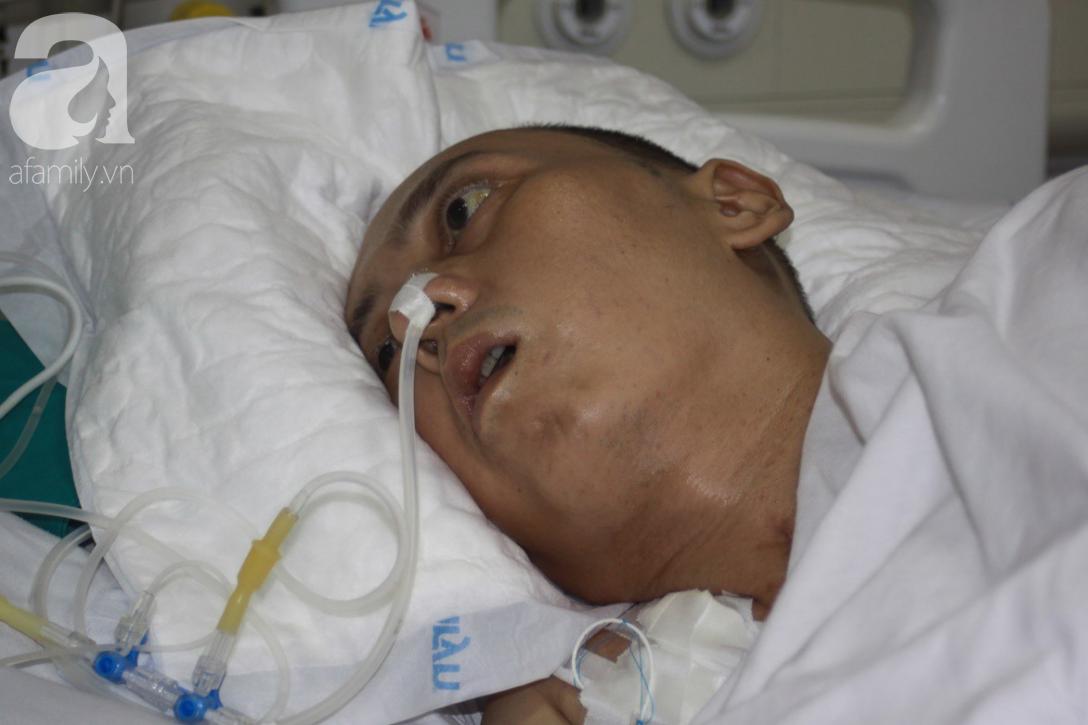 Người chồng trẻ bị xuất huyết não, teo tóp nằm liệt giường, vợ và con trai 9 tuổi cúi đầu xin mọi người giúp đỡ - Ảnh 1.