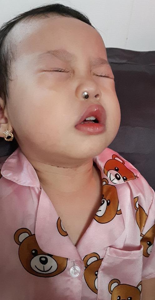 Con ngạt mũi mãi không khỏi, mẹ Sài Gòn kinh hãi khi thấy dị vật này liên tiếp chui ra từ mũi con  - Ảnh 4.