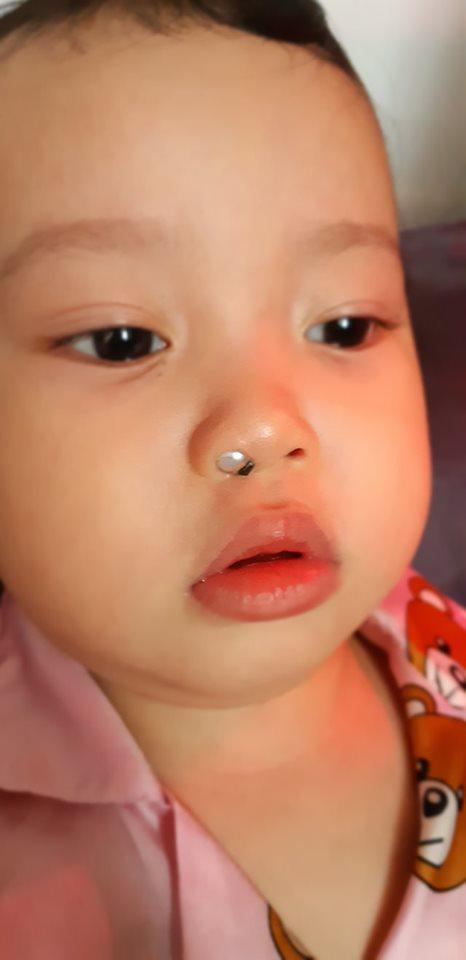 Con ngạt mũi mãi không khỏi, mẹ Sài Gòn kinh hãi khi thấy dị vật này liên tiếp chui ra từ mũi con  - Ảnh 5.