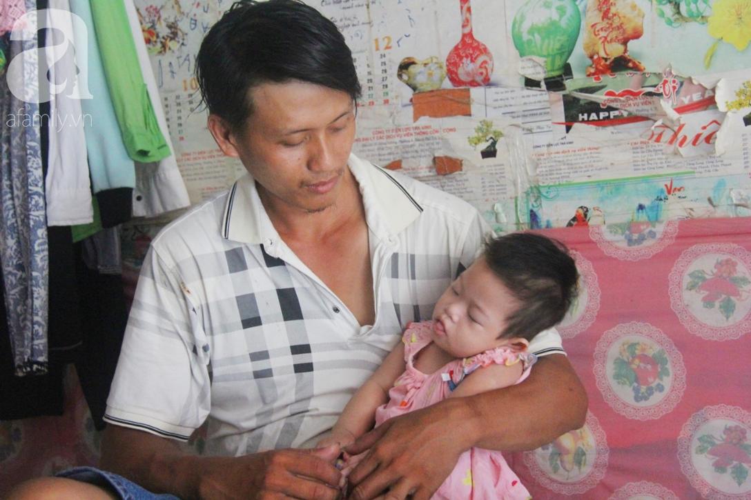 Bé gái 1 tuổi co giật liên tục đến mức méo miệng, bố mẹ nghèo bật khóc khi đã có tiền chữa bệnh cho con - Ảnh 1.