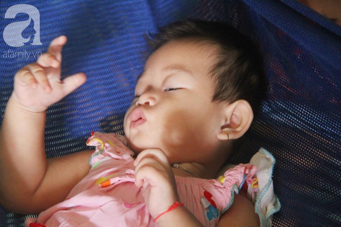 Bé gái 1 tuổi co giật liên tục đến mức méo miệng, bố mẹ nghèo bật khóc khi đã có tiền chữa bệnh cho con - Ảnh 2.