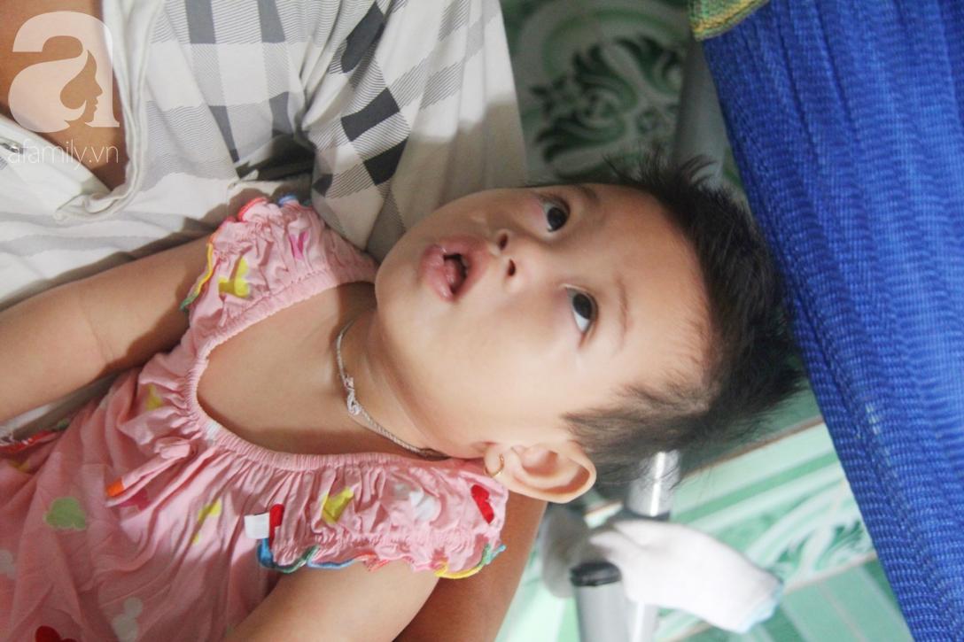 Bé gái 1 tuổi co giật liên tục đến mức méo miệng, bố mẹ nghèo bật khóc khi đã có tiền chữa bệnh cho con - Ảnh 13.
