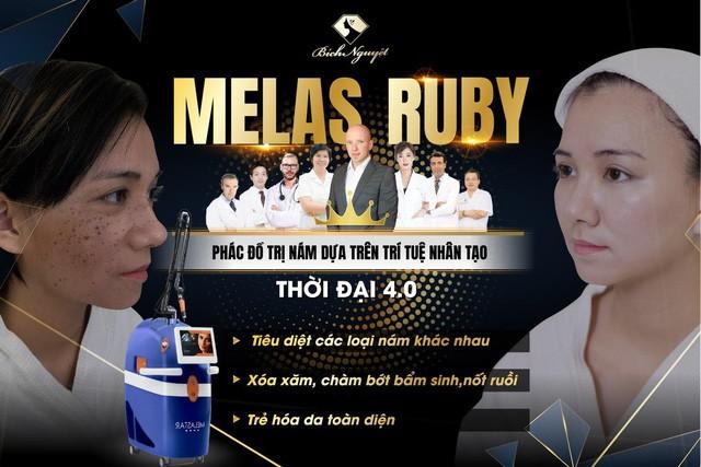 """Hàng nghìn khách hàng trị nám thành công với """"phác đồ Melas Ruby"""" - Ảnh 3."""