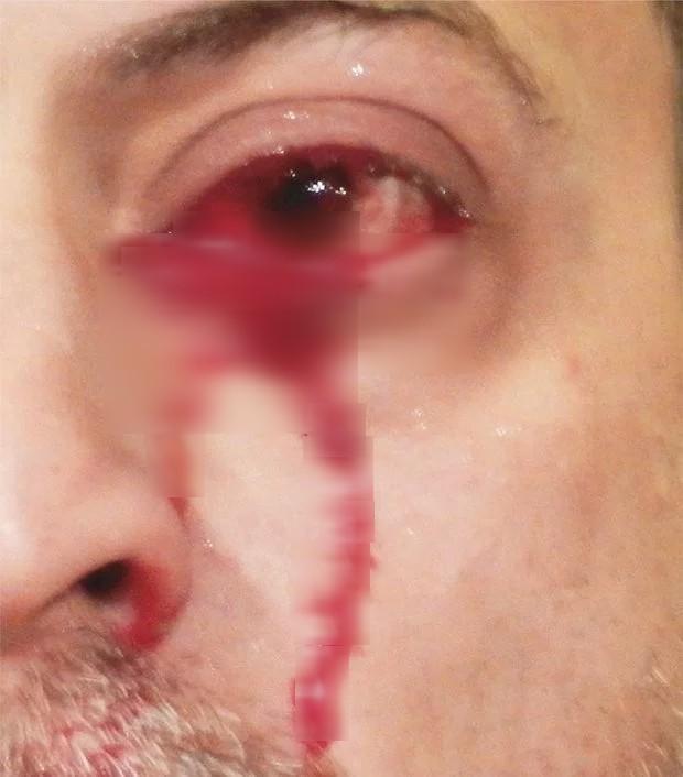 Hoảng sợ tột độ khi bất ngờ khóc ra máu: Câu chuyện kinh hoàng của người đàn ông hoàn toàn khỏe mạnh - Ảnh 1.