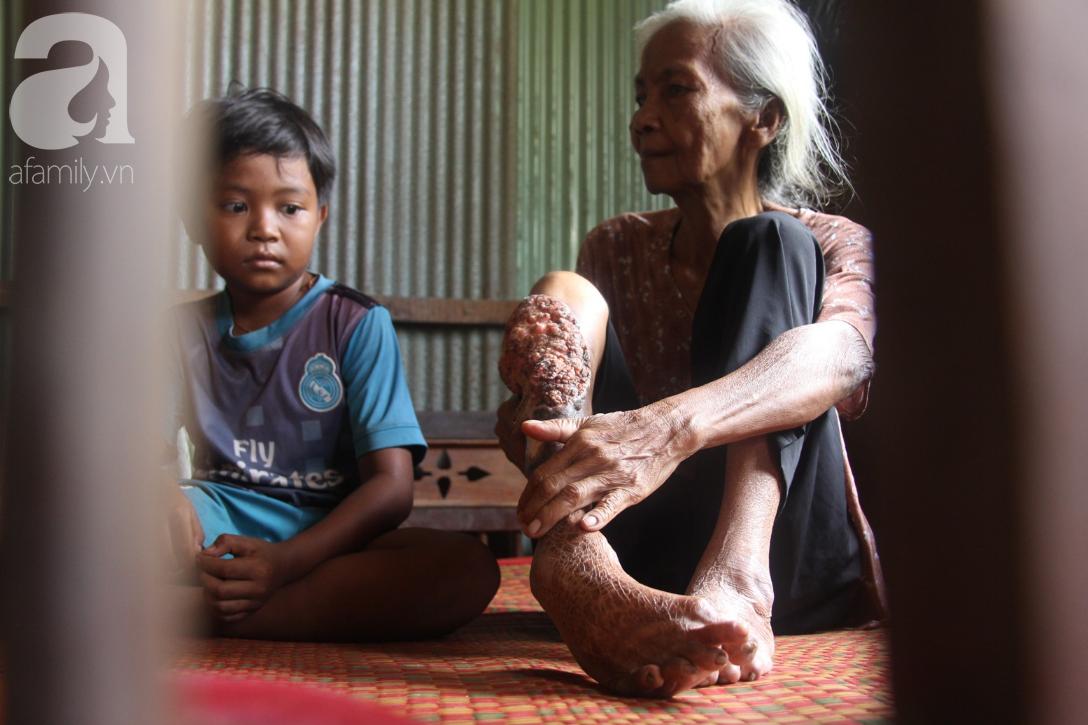 Lời khẩn cầu của người bà 70 tuổi mù một bên mắt, chân bị hoại tử, thối rữa nặng mà không có tiền phẫu thuật - Ảnh 14.