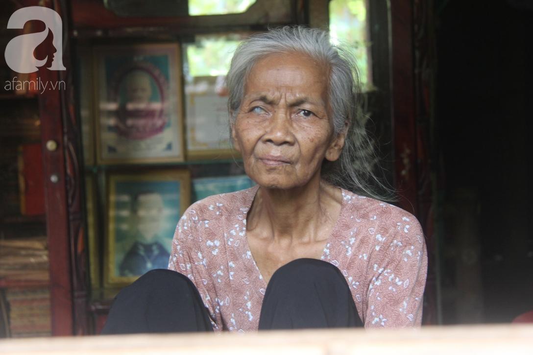 Lời khẩn cầu của người bà 70 tuổi mù một bên mắt, chân bị hoại tử, thối rữa nặng mà không có tiền phẫu thuật - Ảnh 3.