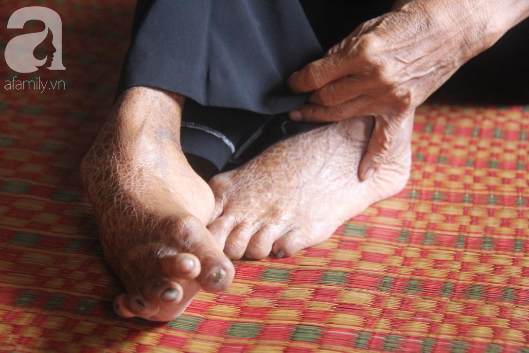 Lời khẩn cầu của người bà 70 tuổi mù một bên mắt, chân bị hoại tử, thối rữa nặng mà không có tiền phẫu thuật - Ảnh 12.