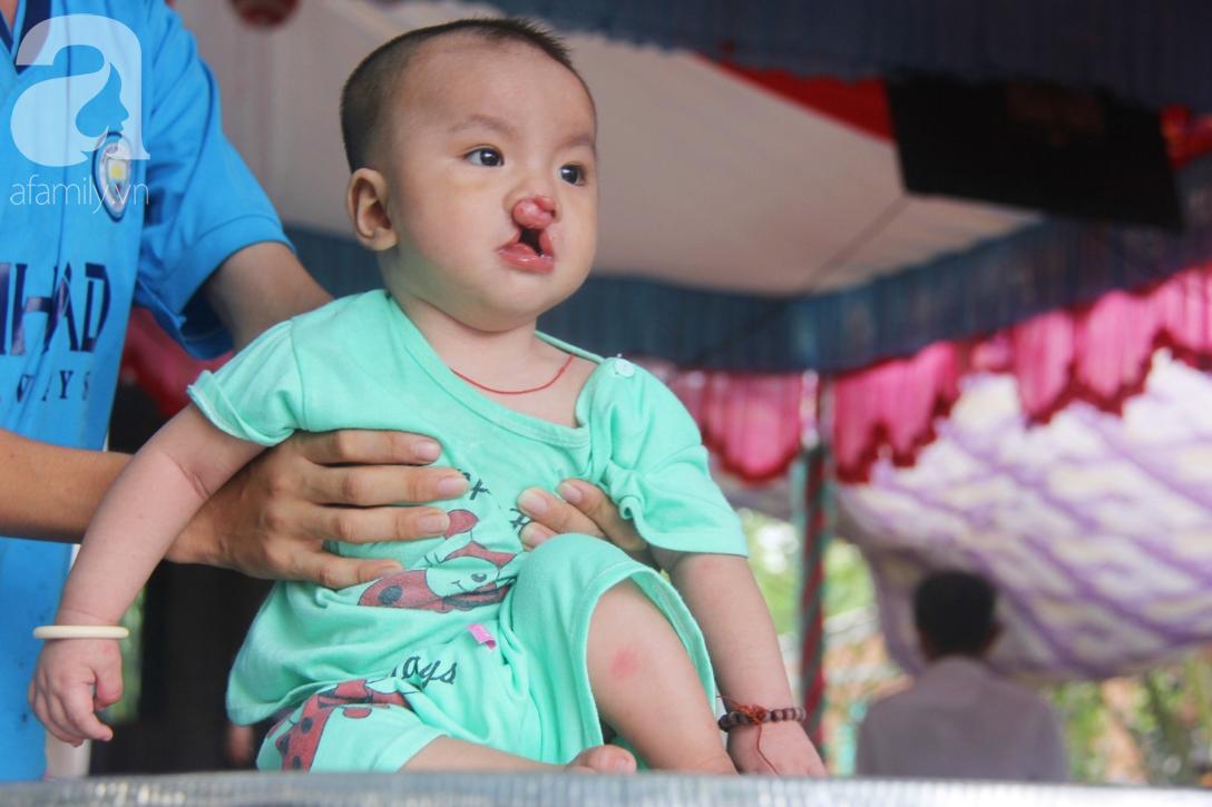 Tròn một năm, bé trai suy dinh dưỡng chỉ nặng 2kg nằm chờ chết vì mẹ nghèo nay đã bụ bẫm, đáng yêu không ngờ - Ảnh 1.