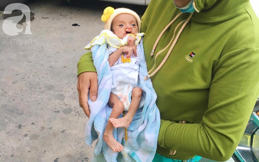 Tròn một năm, bé trai suy dinh dưỡng chỉ nặng 2kg nằm chờ chết vì mẹ nghèo nay đã bụ bẫm, đáng yêu không ngờ - Ảnh 4.