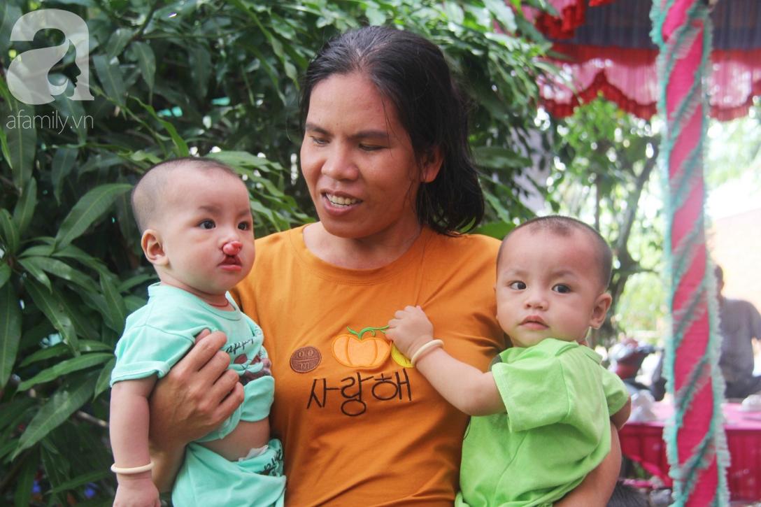 Tròn một năm, bé trai suy dinh dưỡng chỉ nặng 2kg nằm chờ chết vì mẹ nghèo nay đã bụ bẫm, đáng yêu không ngờ - Ảnh 2.