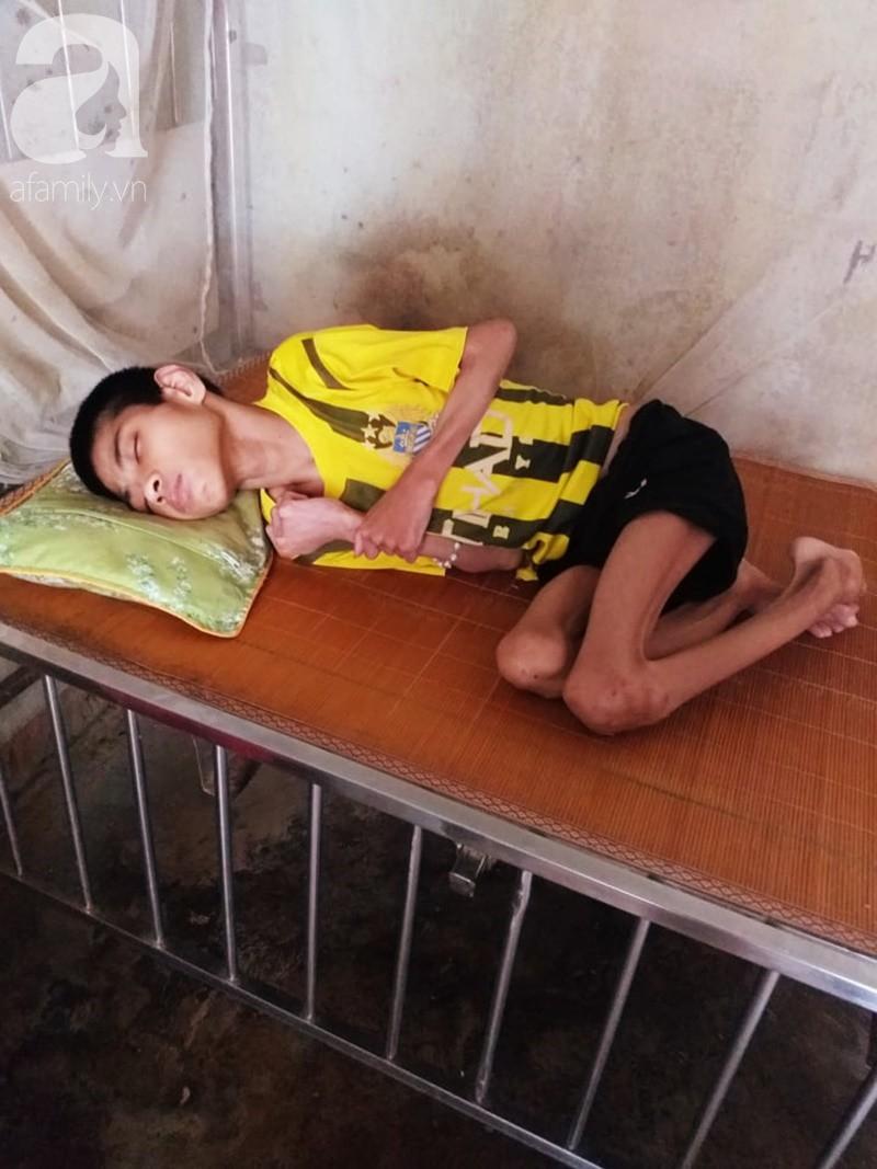 Lời khẩn cầu của người bà chăm 2 đứa cháu bị bại liệt, teo não bẩm sinh, cố giành giật sự sống từng ngày - Ảnh 9.