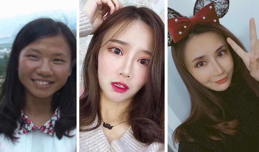 Những cô gái đập mặt xây lại ở Trung Quốc: Đời sang trang nhờ diện mạo mới đến nỗi xem bác sĩ thẩm mỹ là cha mẹ thứ 2 - Ảnh 1.