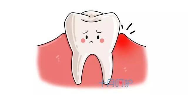 Bệnh răng miệng của mẹ bầu ảnh hưởng đến thai nhi như thế nào? - Ảnh 1.