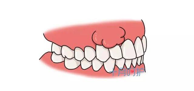 Bệnh răng miệng của mẹ bầu ảnh hưởng đến thai nhi như thế nào? - Ảnh 3.