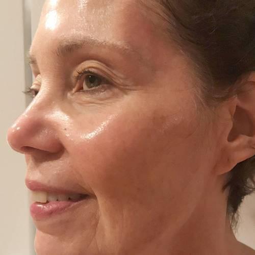 Ngoài 70 nhưng da căng bóng như 30, người phụ nữ tiết lộ 7 chai serum mình dùng và cách mix 3 loại thần thánh - Ảnh 2.