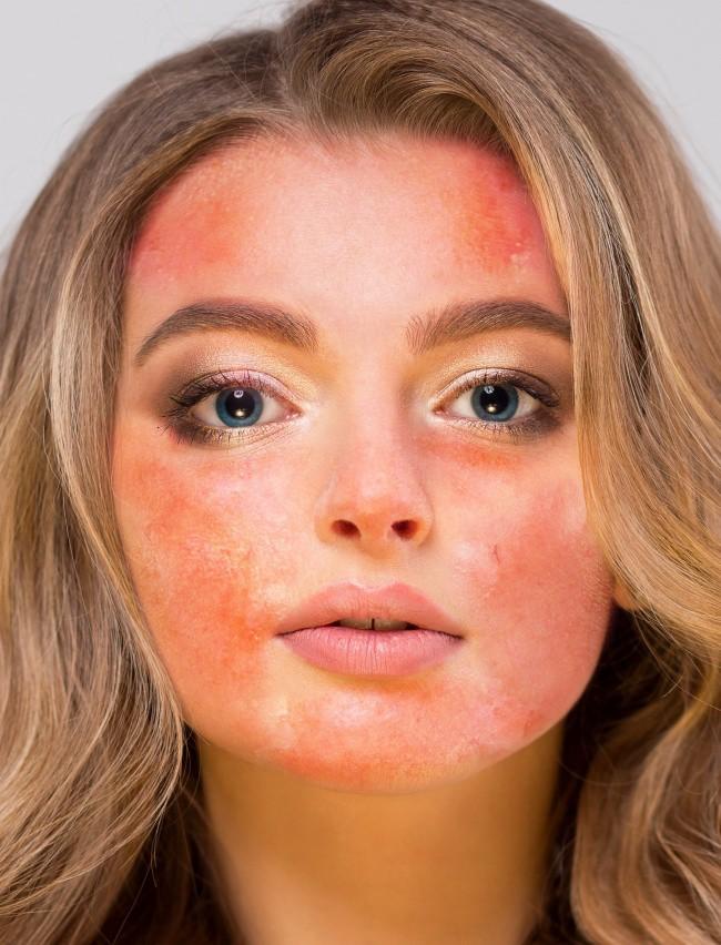 4 sản phẩm tự nhiên thường được khuyên để dưỡng da mặt nhưng thực ra lại gây hại không tưởng, chị em phải cẩn thận - Ảnh 3.