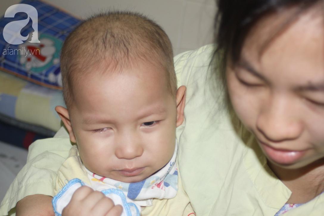 Lời khẩn cầu của người mẹ có con trai 1 tuổi nguy kịch vì ung thư võng mạc không có tiền mổ, bố bỏ đi - Ảnh 4.
