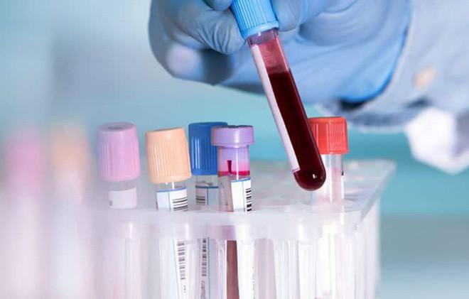 Ai cũng tưởng tầm soát ung thư là giải pháp phát hiện sớm mà không biết 3 tác hại này - Ảnh 5.