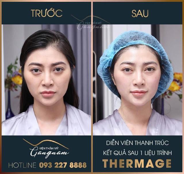 3 nguy hại lớn khi căng da bằng phương pháp Thermage giả, nhái - Ảnh 4.