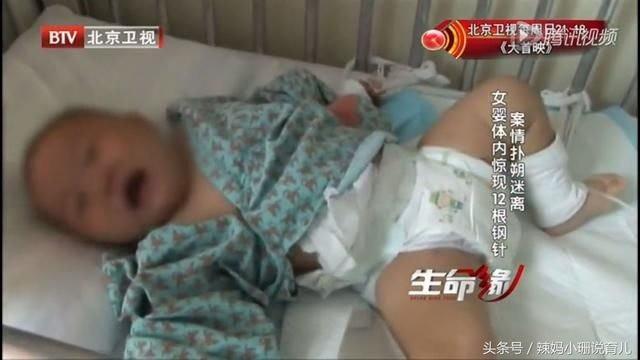 Câu chuyện bé gái 10 tháng tuổi bị 12 cây kim đâm vào người: Thủ phạm là người thân và nguyên nhân được đồn thổi khiến ai cũng rùng mình - Ảnh 4.