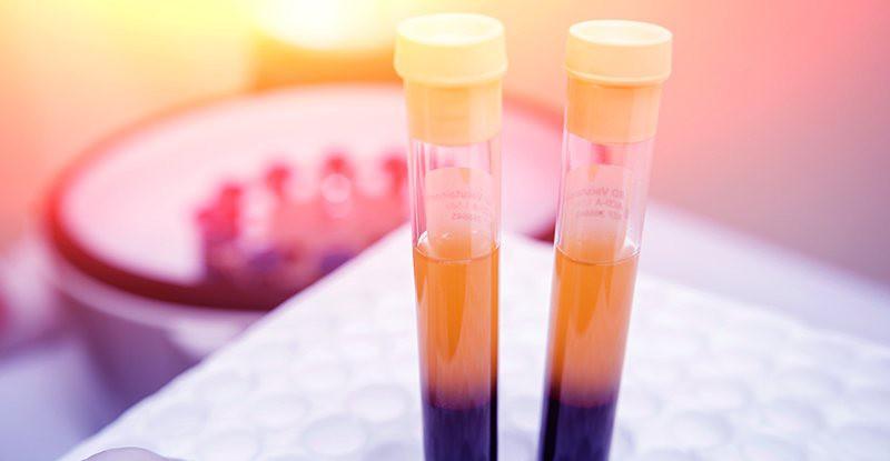 Chuyên gia nói gì về công nghệ trẻ hóa da PRP khiến bạn hóa ma cà rồng trong chốc lát? - Ảnh 3.