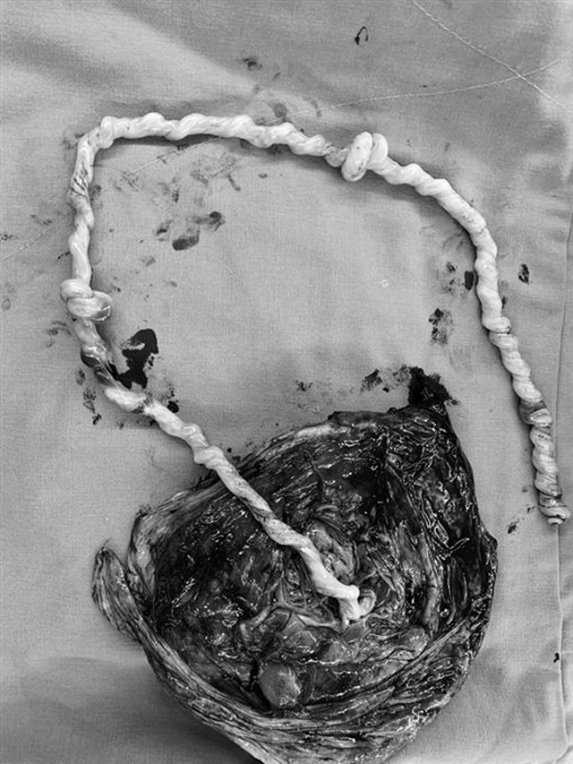 Bác sĩ gọi đây là kỳ tích bởi thai nhi sống sót khi dây rốn thắt nút 2 vòng - Ảnh 1.