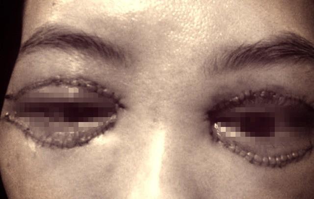Cắt mí giúp mắt đẹp hơn nhưng làm không đúng bước này thì dễ chịu cảnh mắt xếch, mắt trợn ngược - Ảnh 1.