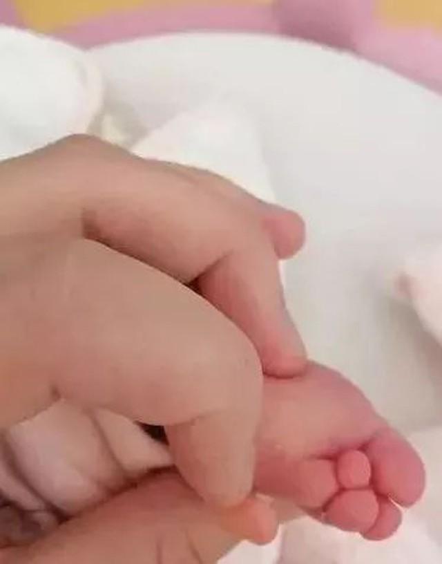 Mẹ bầu tầm soát dị tật thai nhi trước sinh không phát hiện dấu hiệu bất thường, nhưng đến ngày sinh mẹ chết điếng khi thấy điều này - Ảnh 2.
