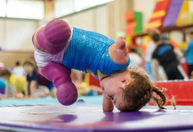 Bé gái 5 tuổi mất cả tứ chi vì viêm màng não tự tin tập môn thể thao mà người đủ tay chân cũng e ngại - Ảnh 4.