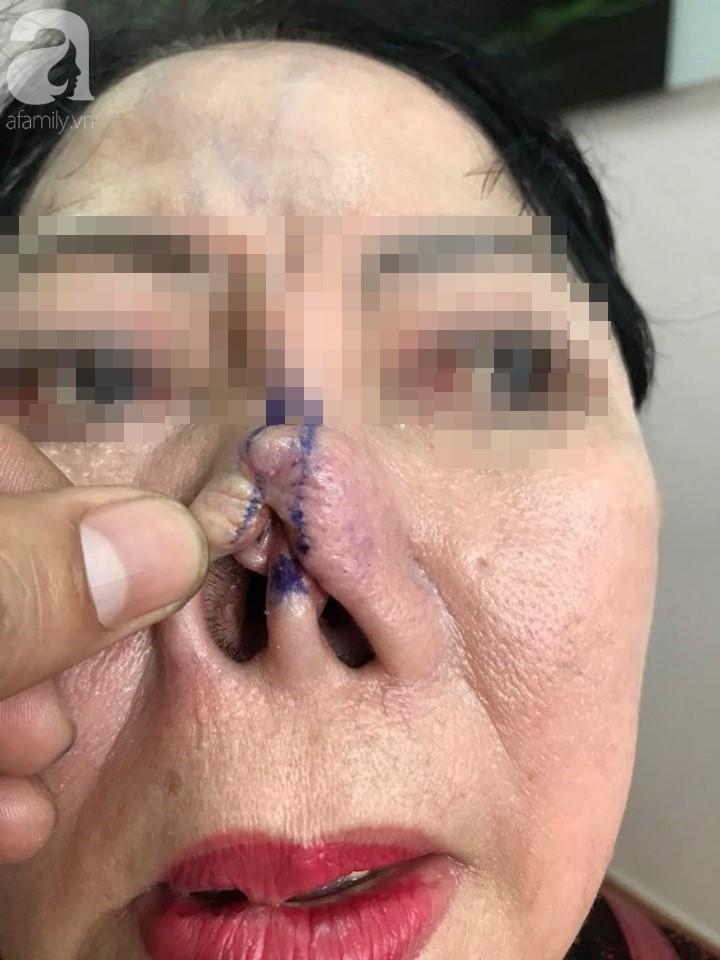 """Người phụ nữ 3 năm bị biến dạng mặt vì sửa mũi thất bại: """"Ra đường ai cũng gọi tôi là quỷ dạ xoa"""" - Ảnh 3."""