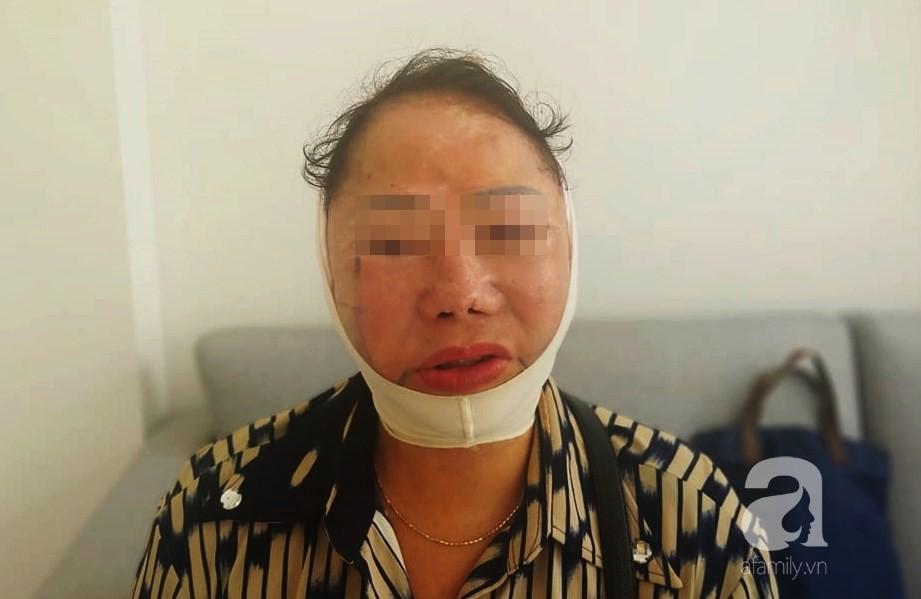 """Người phụ nữ 3 năm bị biến dạng mặt vì sửa mũi thất bại: """"Ra đường ai cũng gọi tôi là quỷ dạ xoa"""" - Ảnh 6."""