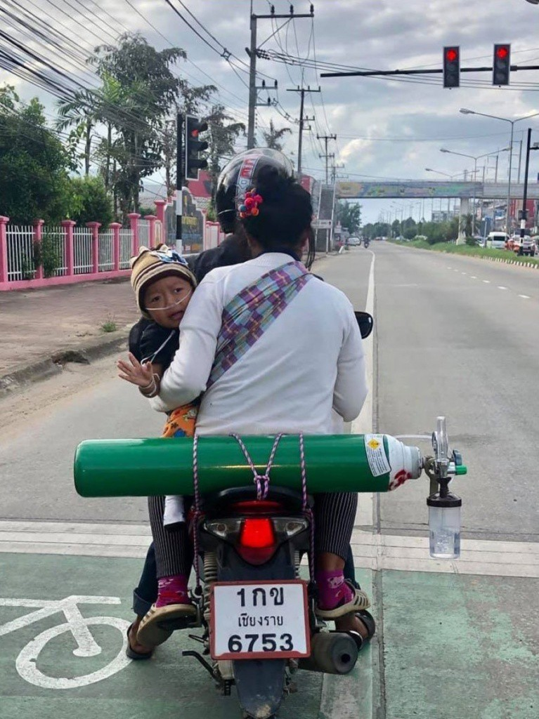 loving-parents-tirelessly-travel-120km-to-get-an-oxygen-tank-every-2-days-so-their-son-can-live-world-of-buzz-767x1024