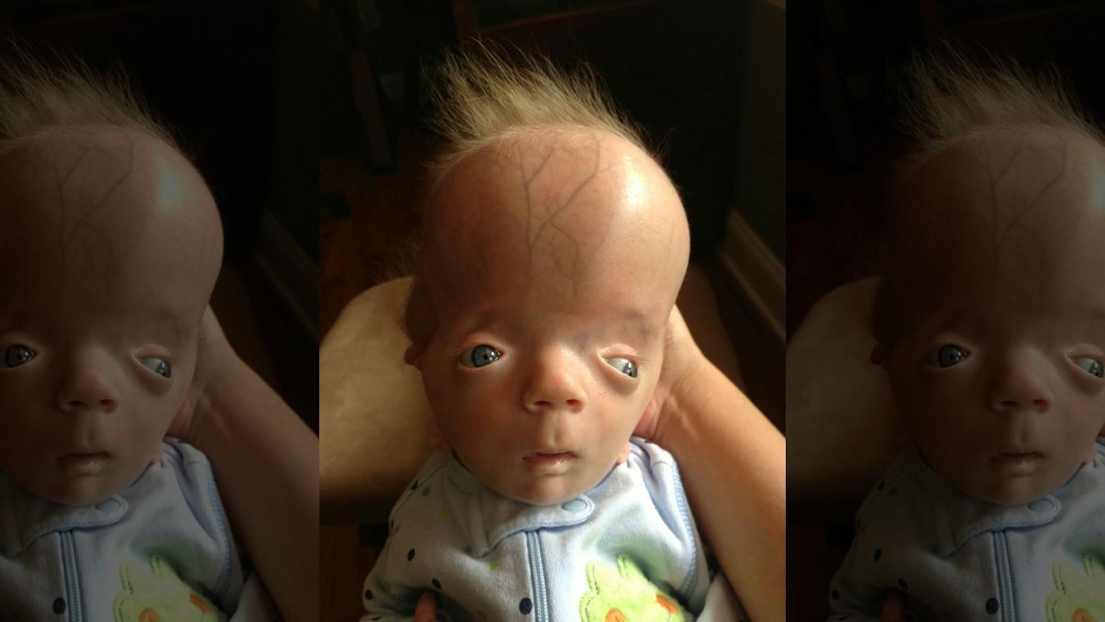 Nằm trong bụng mẹ khỏe mạnh, bé trai chào đời với hình hài kỳ lạ khiến gia đình sợ hãi và hội chứng duy nhất chỉ có mình em mắc phải - Ảnh 2.
