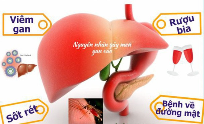 Cách thải độc tốt nhất là ngừng đầu độc gan, BS khuyến cáo những việc cần dừng ngay - Ảnh 2.