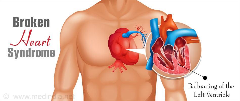 Khoa học chứng minh: Quá đau lòng hay quá hạnh phúc có thể làm tăng nguy cơ mắc bệnh ung thư - Ảnh 2.