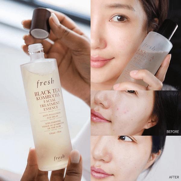 nuoc-than-Fresh-Black-Tea-Kombucha-Facial-Treatment-Essence-250ml-3