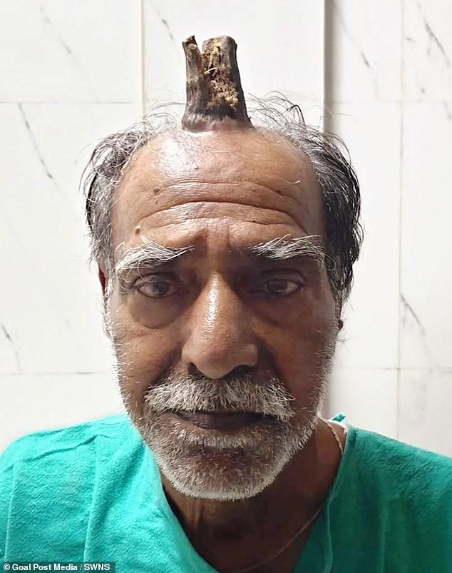 Căn bệnh lạ khiến cụ ông 74 tuổi bỗng dưng mọc thêm sừng trên đỉnh đầu - Ảnh 1.