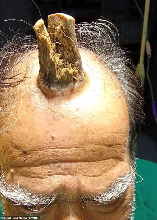 Căn bệnh lạ khiến cụ ông 74 tuổi bỗng dưng mọc thêm sừng trên đỉnh đầu - Ảnh 2.
