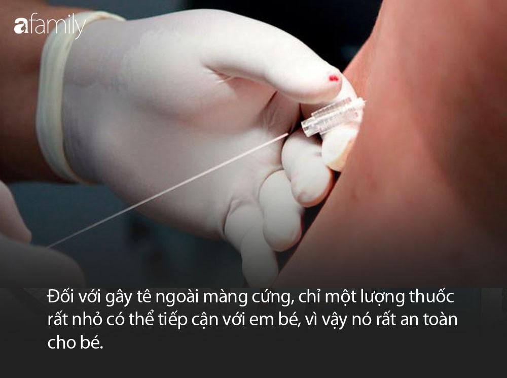 epidural_3