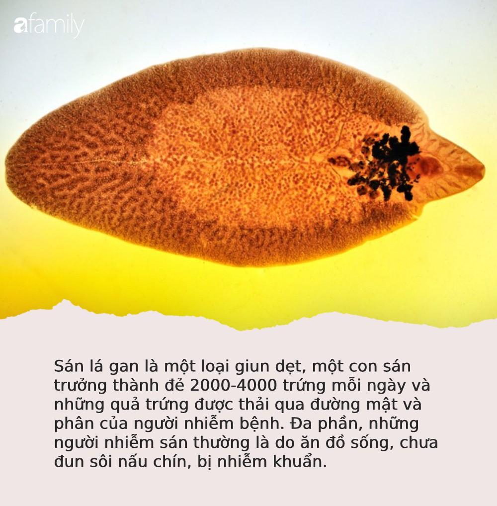 """Sán lá gan làm tổ kín 2 chân và """"vùng kín"""" người phụ nữ vì món ăn nhiều người Việt nghiện mê mẩn - Ảnh 4."""