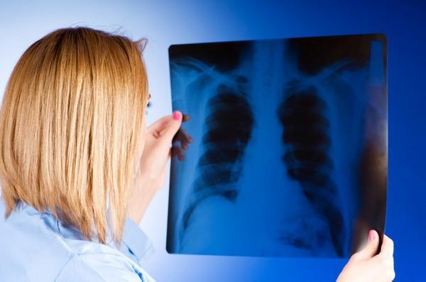 Cả đời không hút thuốc, người đàn ông 42 tuổi vẫn mắc ung thư phổi vì công việc đã làm suốt 20 năm - Ảnh 2.
