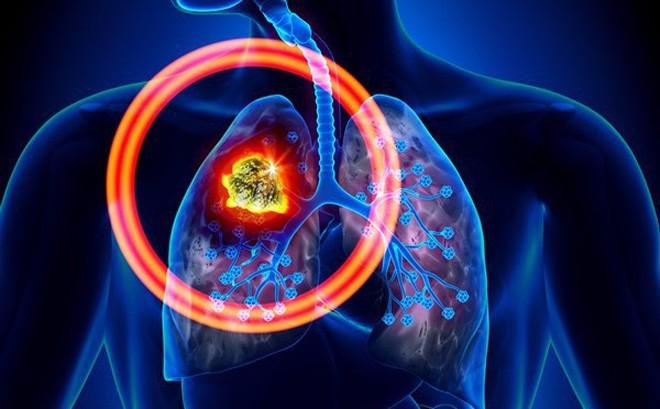 Cả đời không hút thuốc, người đàn ông 42 tuổi vẫn mắc ung thư phổi vì công việc đã làm suốt 20 năm - Ảnh 3.