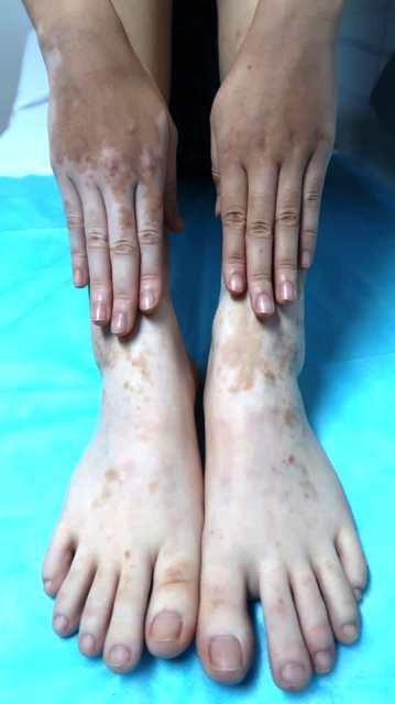 Chữa mồ hôi bằng lá trầu không, cô gái hoảng hốt khi tay chân đổi màu trắng bệch - Ảnh 1.