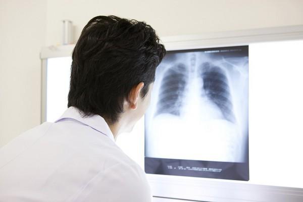 Ho 4 tuần nhưng không đi khám, người đàn ông khiến bác sĩ choáng vì toàn bộ phổi bị lấp đầy bởi thứ này - Ảnh 2.