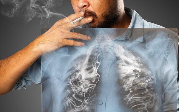 Ho 4 tuần nhưng không đi khám, người đàn ông khiến bác sĩ choáng vì toàn bộ phổi bị lấp đầy bởi thứ này - Ảnh 4.
