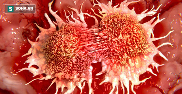 Tìm thấy hoạt chất khiến tế bào ung thư tự sát trong 30 phút - Ảnh 1.