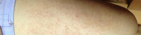 Làm sao để khắc phục viêm lỗ chân lông?